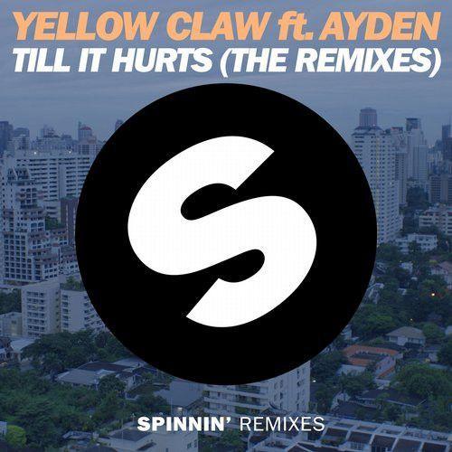 Till It Hurts (the Remixes)